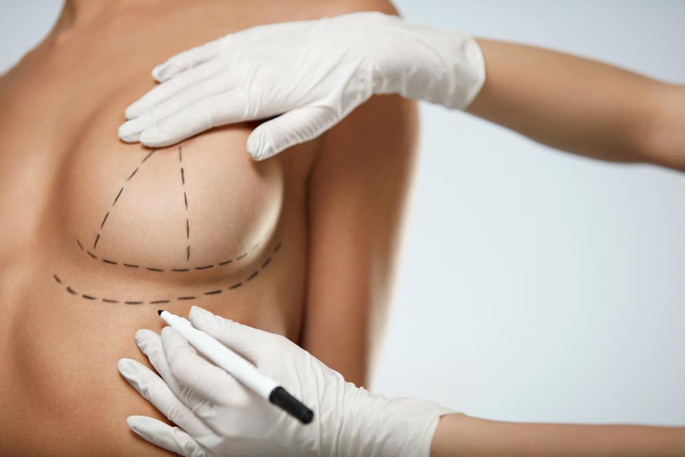 Plastyka piersi, czyli ich powiększenie, pomniejszenie czy lifting – Fakty i mity nt. operacji plastycznych biustu